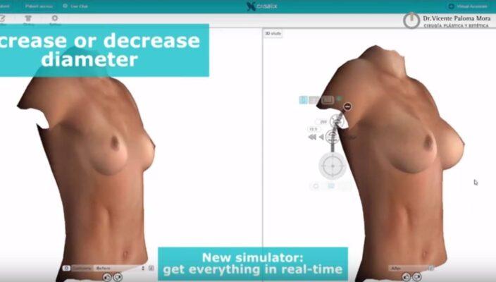 Aumento de Pecho | crisalix simulador-3d
