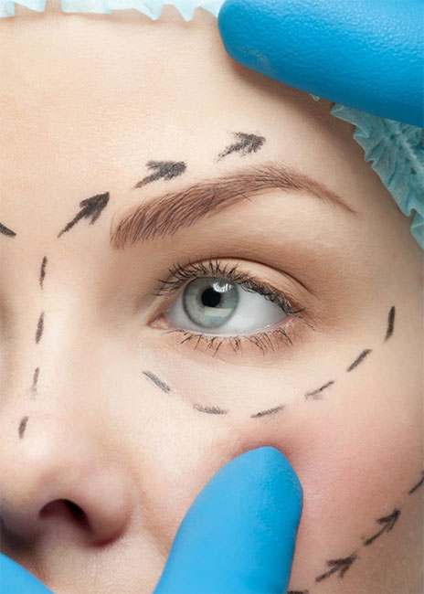 Blefaroplastia|CirugíaPárpados