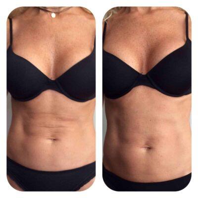 Radiofrecuencia abdomen antes y después