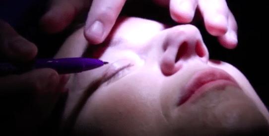 Dr Vicente Paloma   Blefaroplastia Superior en video