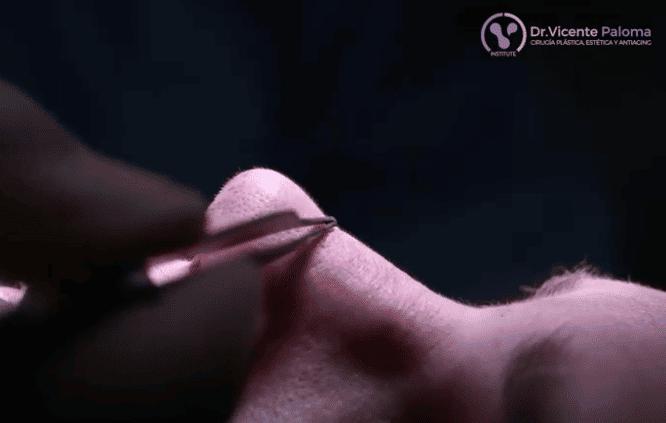 Rinoplastia-abierta-Dr.-Vicente-Paloma