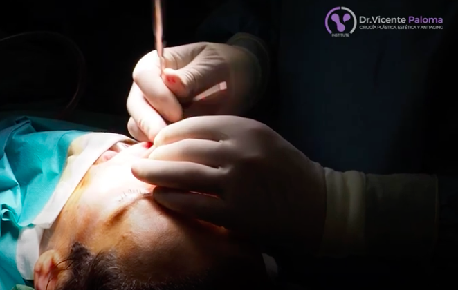 Rinoplastia-abierta-video-Dr.-Vicente-Paloma