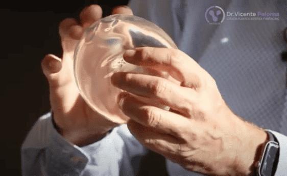 Protesis mamaria transparente | Dr. Vicente Paloma