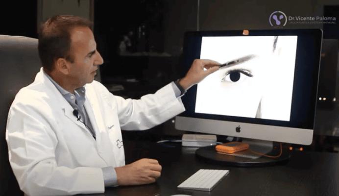 Blefaroplastia | Dr. Vicente Paloma